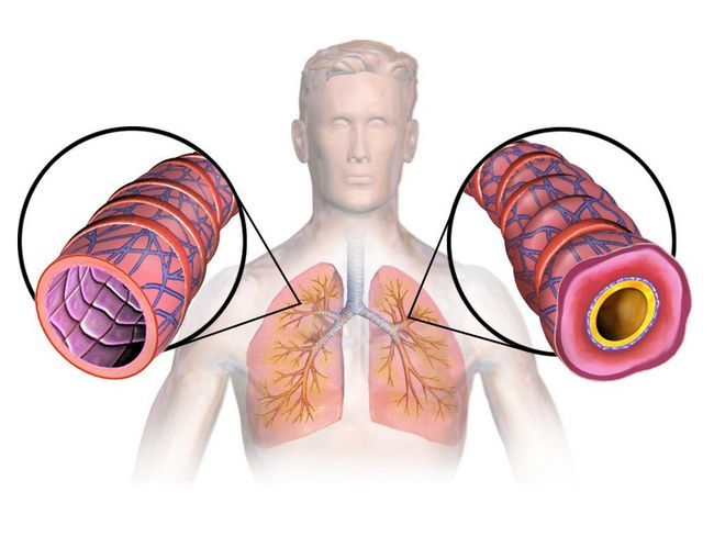 Астма: симптомы, причины, диагностика и лечение