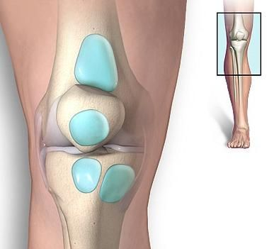 Léčba bursitidy kolenního kloubu: vrátíme se zpátky k chůzi