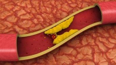 Aortální skleróza a její důsledky