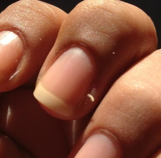 Břicha na prstech: příčiny a léčba